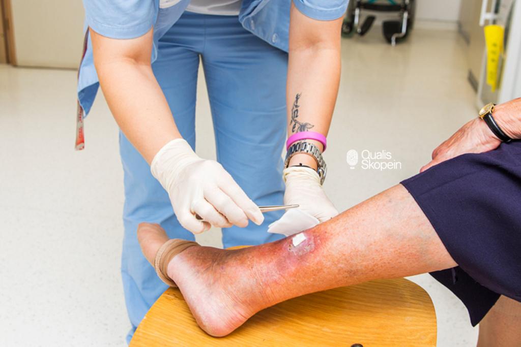 Factores que afectan la curación de heridas: Qualis Skopein