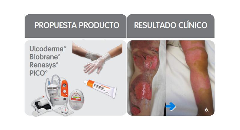 TIME: propuesta productos y resultado clínico del manejo de los bordes de la herida