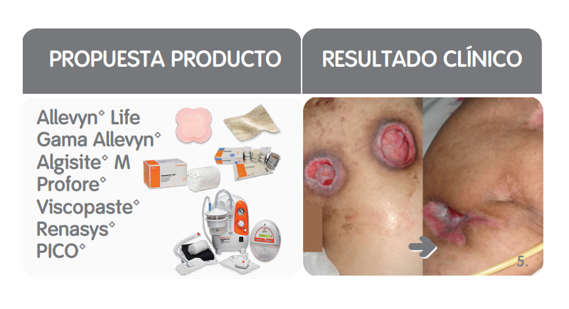 TIME: propuesta productos y resultado clínico del manejo de la maceración o desequilibrio en la humedad