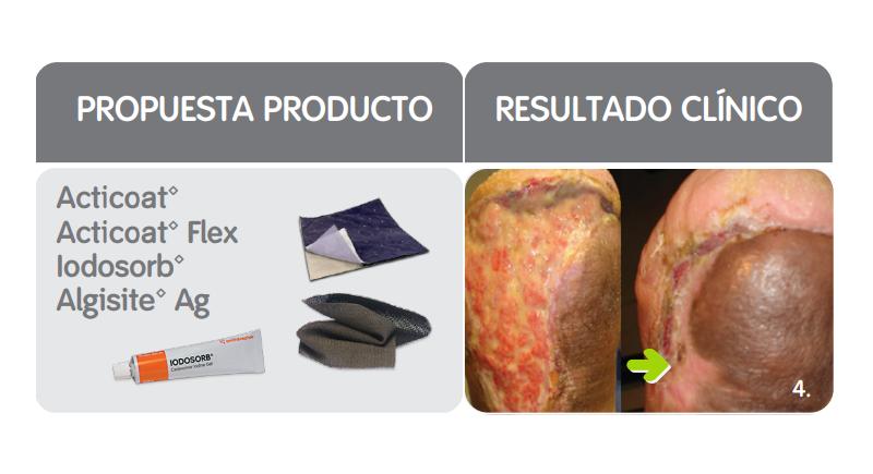 TIME: propuesta productos y resultado clínico del manejo de la infección o inflamación de heridas