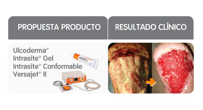 TIME: propuesta productos y resultado clínico del manejo del tejido no viable