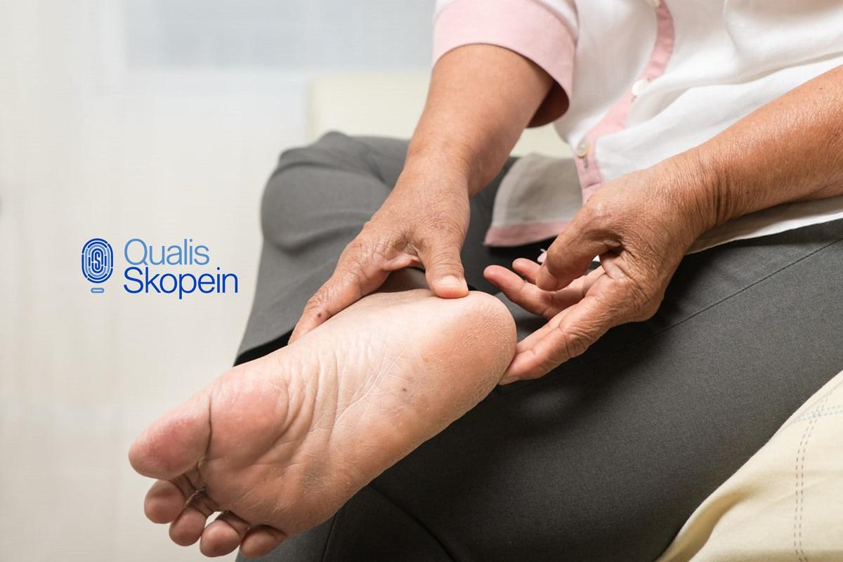 Cuidado de los pies cuando se tiene diabetes: Qualis Skopein