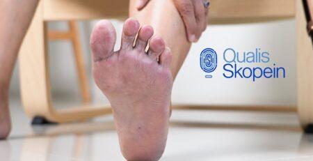 La importancia del cuidado de los pies cuando se tiene diabetes